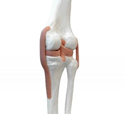 왜 여성이 더 관절염에 취약할까?
